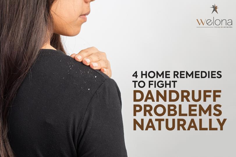 dandruff treatment in Chennai