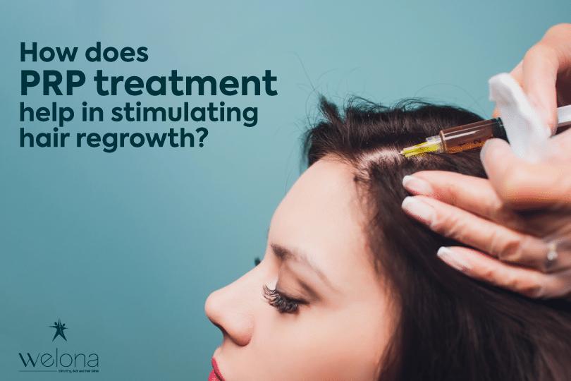 PRP Hair Loss Treatment in Chennai