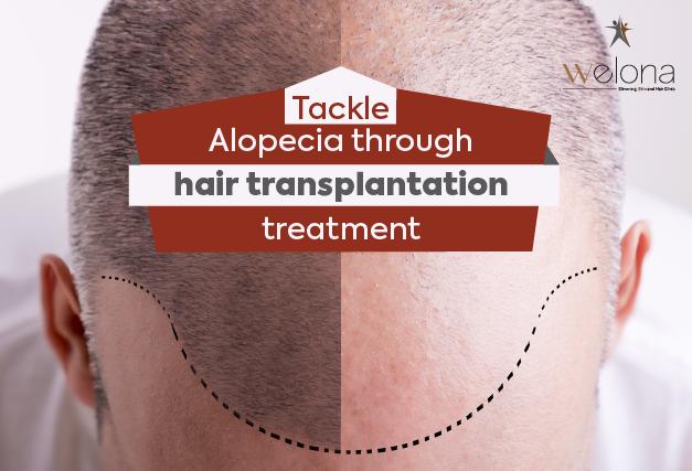 how to tackle Alopecia
