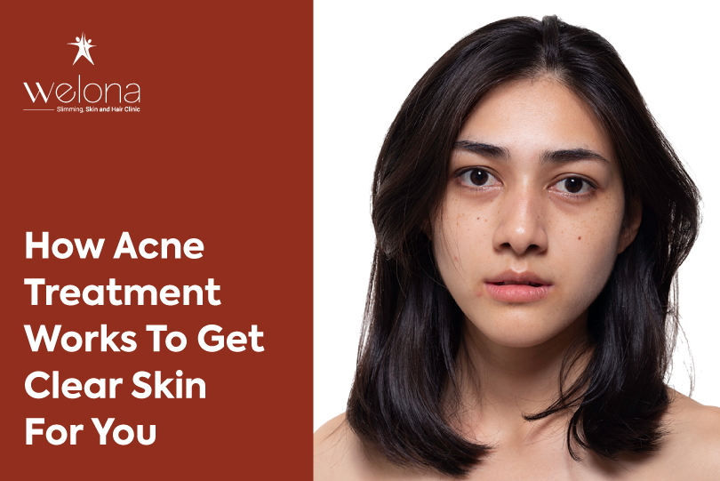 Adult Acne Causes and Treatment