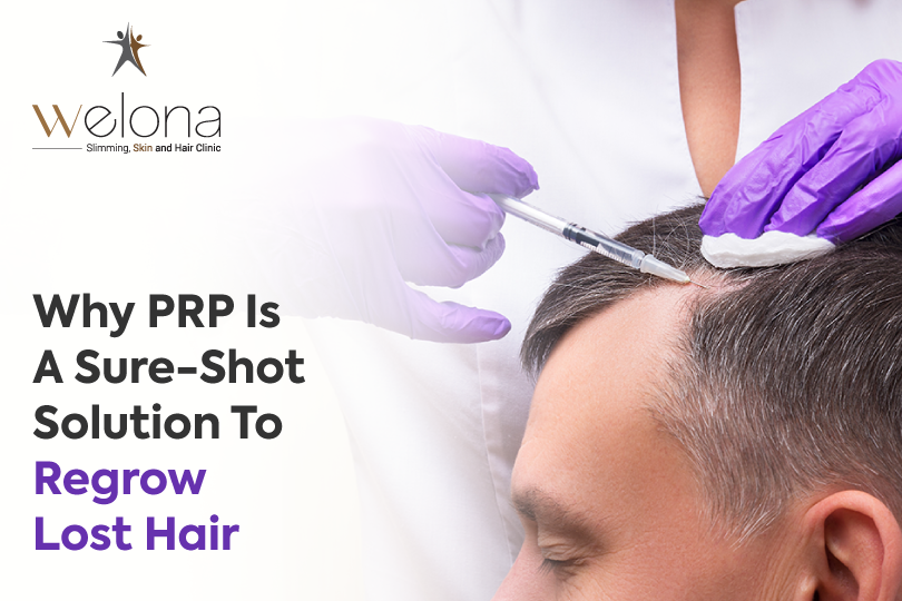 PRP is a Sure-Shot Solution to Regrow Lost Hair