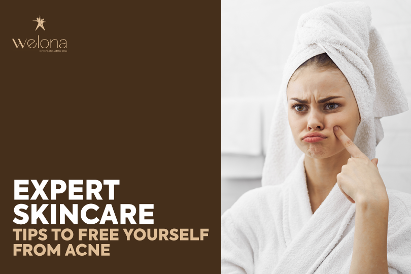 Expert Skincare Tips To Free Yourself From Acne