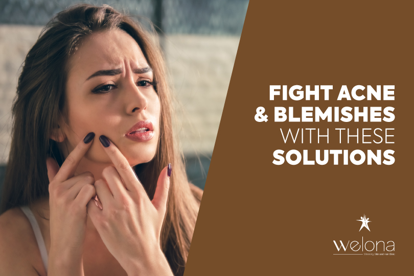 Fight Acne And Blemishes With These Solutions