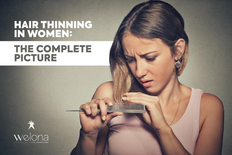 Hair Thinning in Women