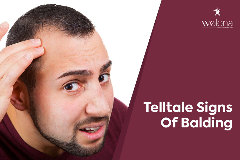 Signs of Balding and Recovery Hacks