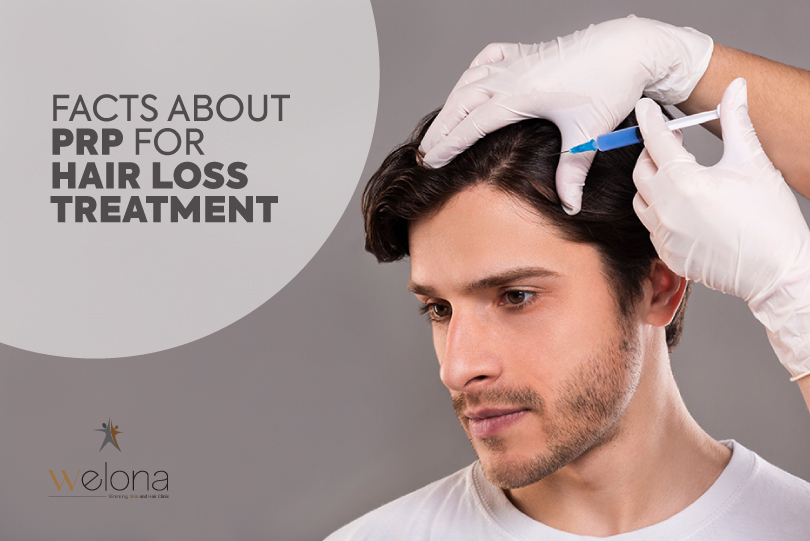 facts about PRP for hair loss treatment