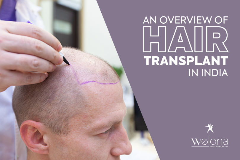 Hair Transplantation in India