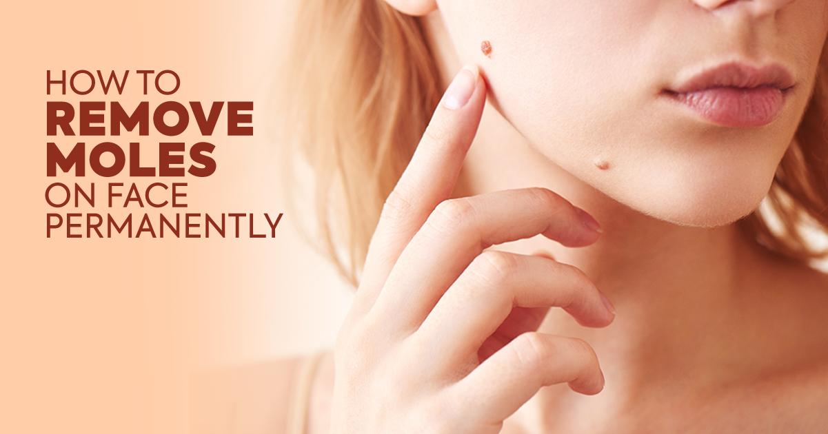 Remove Moles On Face