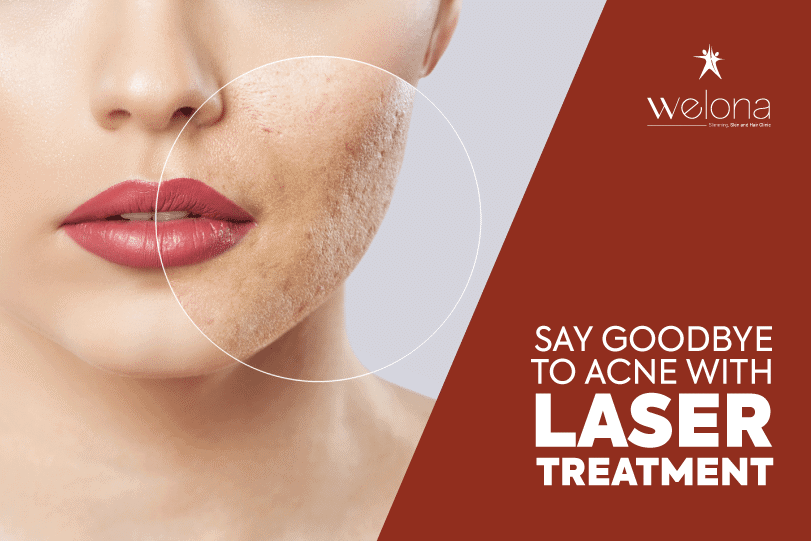 Acne with Laser Treatment