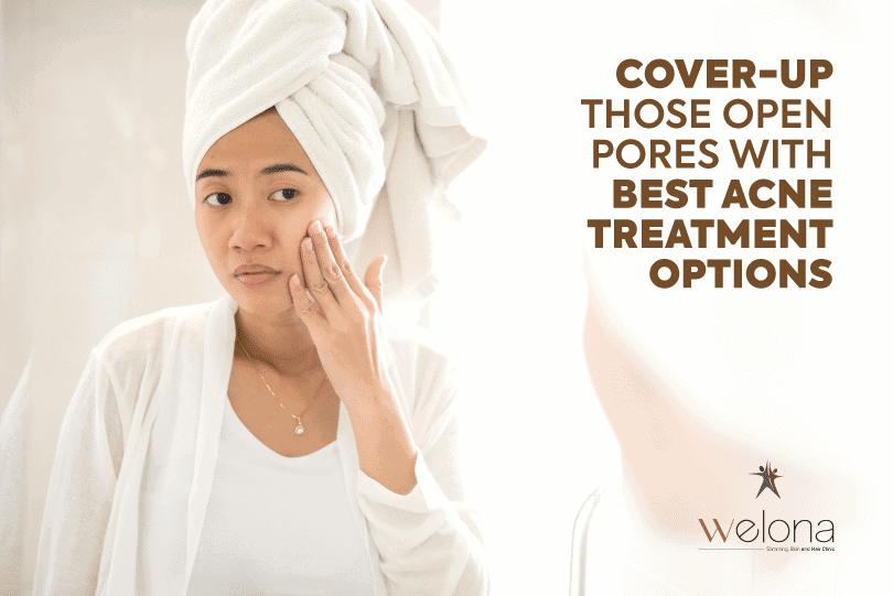 Best Acne Treatment Options