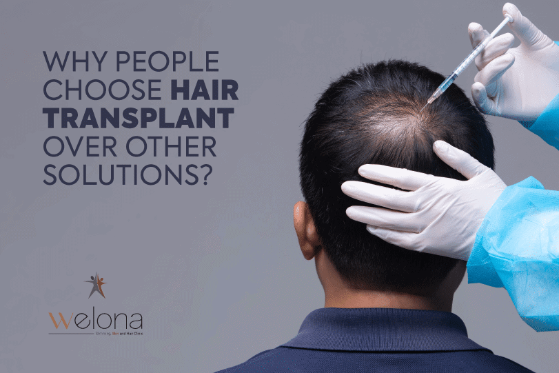 Hair Transplant Over Other Solutions