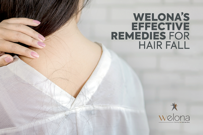 Welona's Effective Remedies For Hair Fall