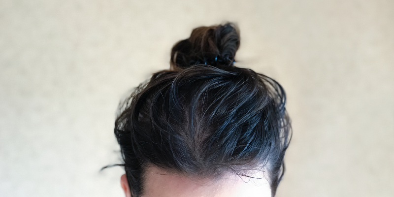 scalp issues