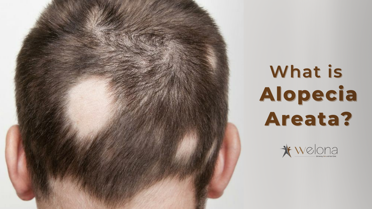 Alopecia Areata – What It is and How to cure it?