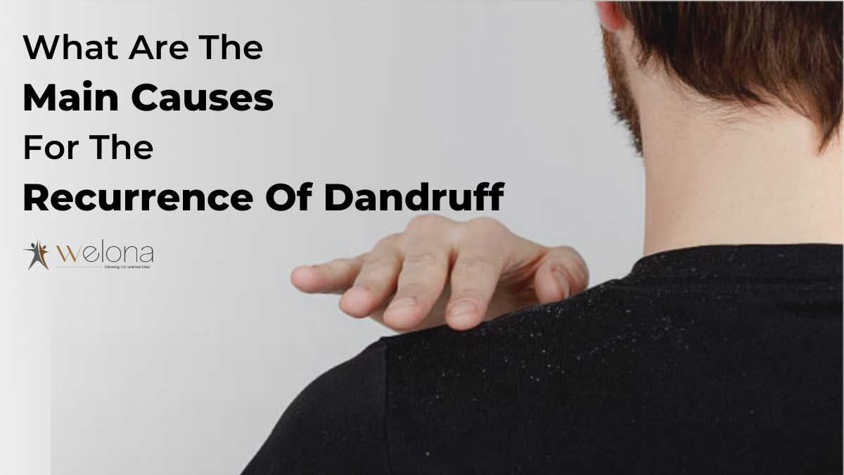 What Are The Main Causes For The Recurrence Of Dandruff?
