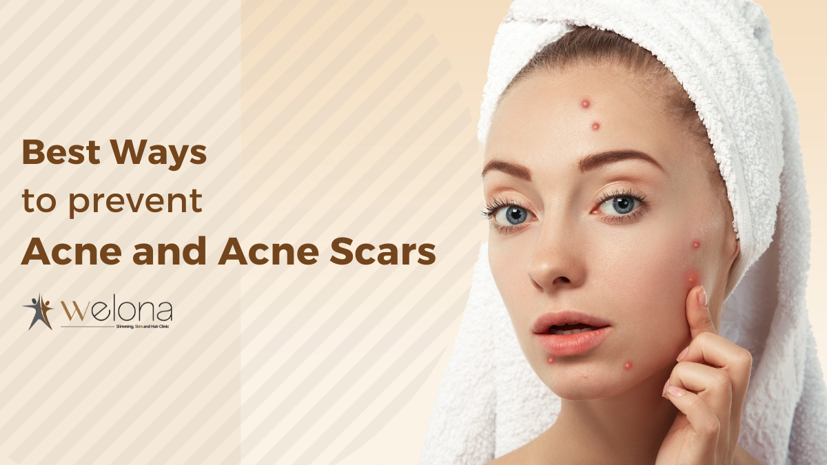 Best Ways to Prevent Acne and Acne Scars