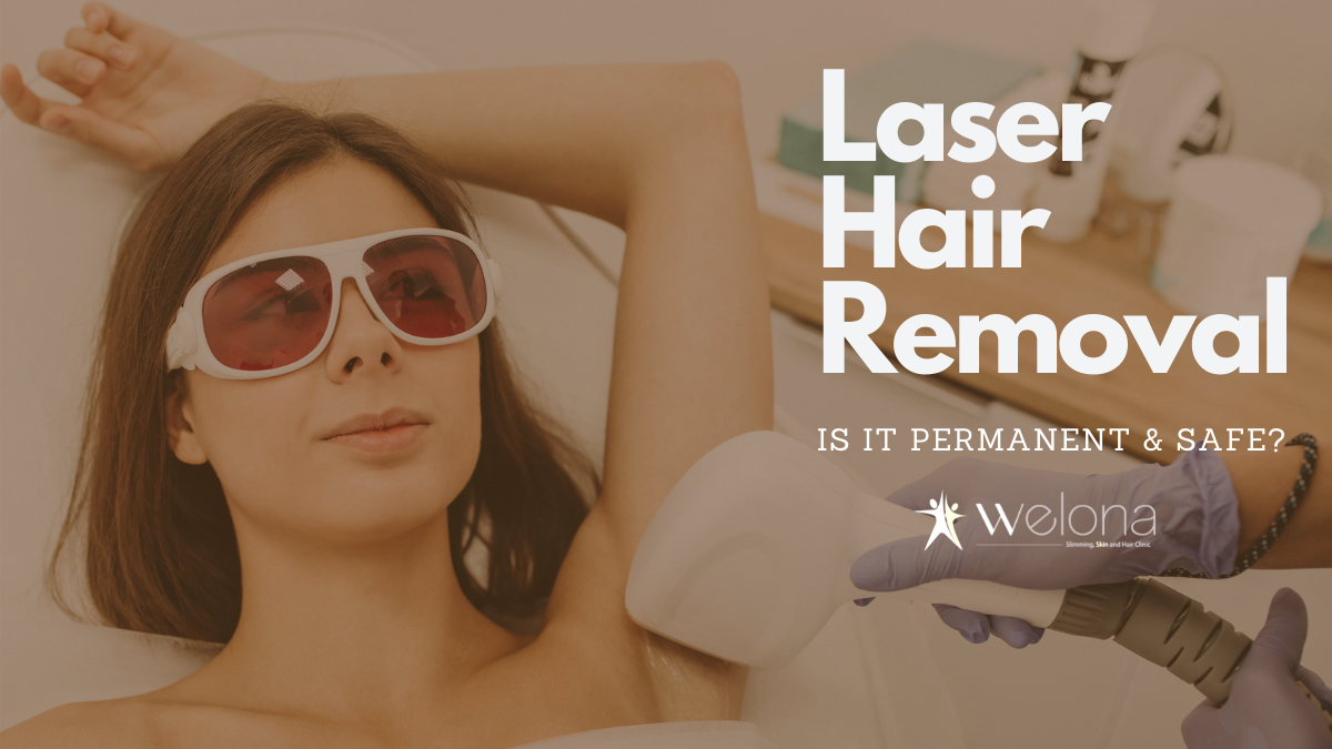 Laser Hair Removal – Is it Permanent and Safe?