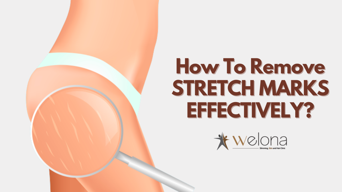 How to Remove Stretch Marks Effectively
