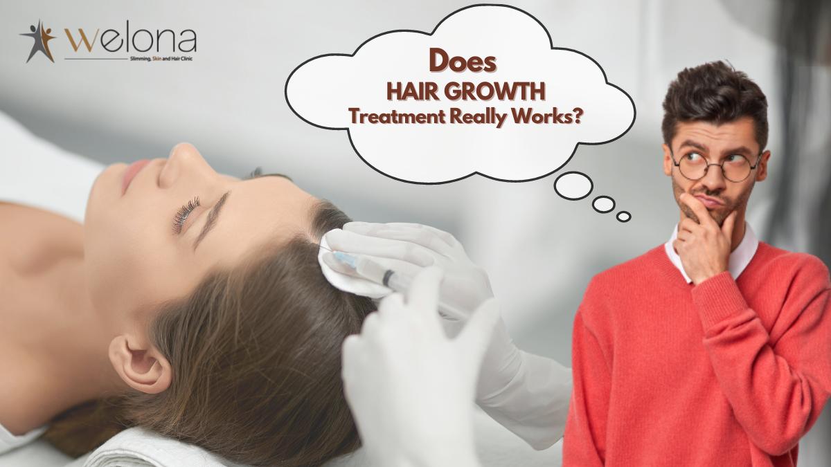 Do Hair Growth Treatments Really work?