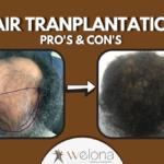 Hair Transplantation benefits