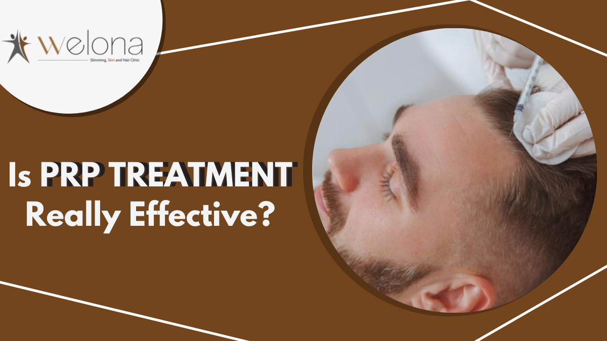 PRP Treatment for Hair – Is It Effective?